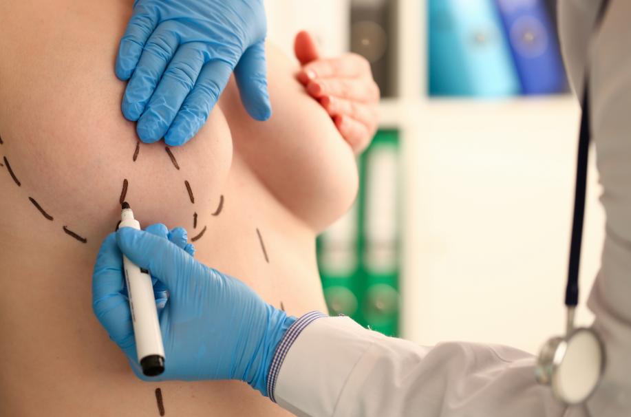 Mamoplastia é toda cirurgia plástica que altera e modifica o formato ou volume das mamas. Conheça mitos e verdades sobre esses procedimentos.