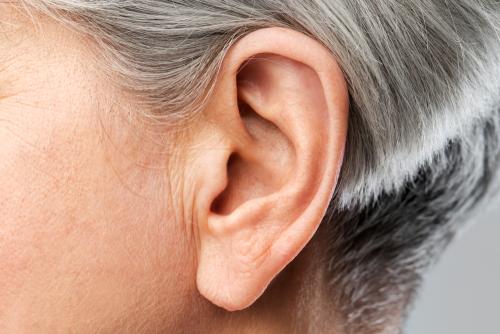Plástica do lóbulo da orelha: saiba como é feita e quando é indicada