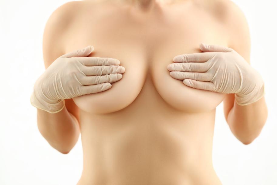 Mastopexia: correção de flacidez da mama