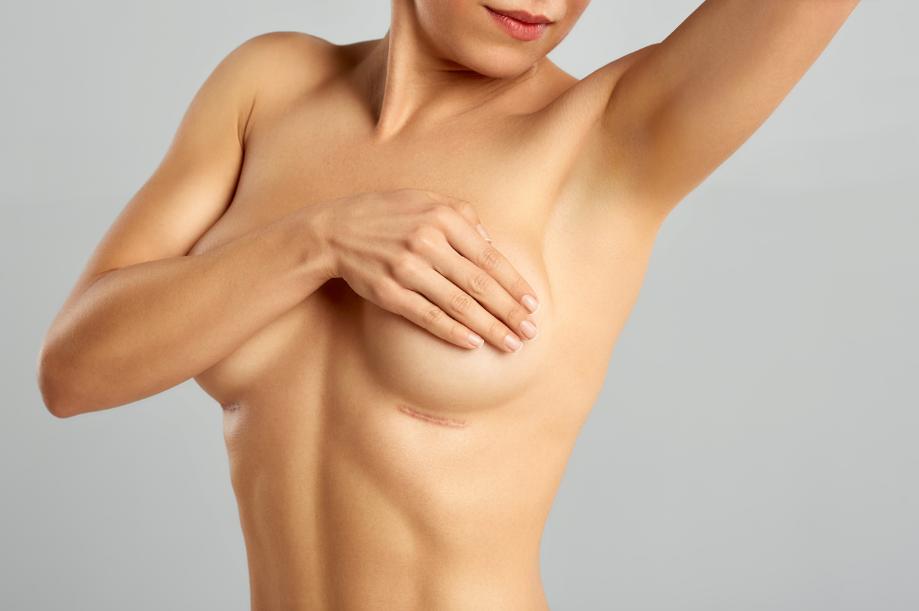 As cirurgias plásticas nas mamas têm sempre o objetivo de melhorar a aparência dessa região. Porém, muitas mulheres temem a permanência de uma cicatriz de mamoplastia no seio. Veja nesse post, o que pode ocorrer após a cirurgiaCicatriz mamoplastia: cuidados que ajudam a melhorar e como cuidar da cicatriz da mamoplastia, para que fique o menos visível possível. Como fica a cicatriz da mamoplastia? A mamoplastia abrange um conjunto de procedimentos cirúrgicos que podem ser realizados nas mamas com finalidade estética ou terapêutica (reconstrução de mama em casos de mastectomia). São divididas em mamoplastia de aumento, mamoplastia redutora, mastopexia com ou sem prótese. Essas cirurgias terão diversas finalidades como: fazer o levantamento de mamas caídas, reduzir o volume dos seios ou aumentar o volume com próteses de silicone. É importante que a paciente tenha consciência que em qualquer mamoplastia, cicatriz é algo com que ela vai ter que conviver por um certo tempo. Cada uma dessas cirurgias vai envolver a realização de uma incisão que deixará marcas dos cortes no primeiro momento, mas que tendem a praticamente sumir com o tempo. Então, seja cicatriz de mamoplastia redutora, de aumento ou mastopexia, existem grandes chances de se tornarem apenas linhas finas após 1 ano. No entanto, algumas mulheres têm facilidade para a formação de cicatrizes hipertróficas e até mesmo quelóide. Essas cicatrizes caracterizam-se por uma saliência espessa na pele e uma elevação em relação ao tecido original. São frutos de um excesso de produção de colágeno. Tipos de cicatriz Após a realização da cirurgia, a cicatriz da mamoplastia terá a ver com o tipo de incisão realizada durante o procedimento cirúrgico: • Meia lua superior: ocorre quando é realizada uma mastopexia sem prótese, quando há pouca retirada de tecido, apenas para subir um pouco a aréola. Então, a cicatriz será na parte superior do bico do seio; • Meia lua inferior: ocorre após realização de mamoplastia de aumento via pe