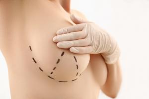 O lifting de mama é um procedimento cirúrgico que permite a restauração da beleza e o rejuvenescimento dos seios. Saiba mais aqui.