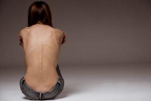 """A mama tuberosa é um termo utilizado para definir algumas deformidades mamárias. Mas você sabe o que é isso? Um dos grandes problemas que a deformidade tuberosa da mama traz são as questões psicológicas e emocionais para as pacientes. Se você está se perguntando: """"Como saber se tenho mama tuberosa?"""" Leia todo esse post para obter as respostas. O que é mama tuberosa? A mama tuberosa é resultado de uma malformação que vai resultar em seios assimétricos. Esse é um problema que ocorre por anomalia congênita. Usualmente, uma mama se desenvolve de forma normal e a outra fica atrofiada. Porém, as mamas tuberosas podem ocorrer também bilateralmente. Quando é unilateral, a mama que fica menor se posiciona numa posição mais alta no tórax, além de ter um formato diferente, com uma base estreita e que resulta em uma forma mais pontiaguda, semelhante a um tubo, por isso, o nome é tuberosa ou tubular. Quando ocorrem bilateralmente têm o mesmo formato e também ficam acima do sulco mamário. Em muitos casos, as mamas tuberosas tubulares têm uma aréola bem alargada, os seios são muito pouco desenvolvidos (hipoplasia mamária) e o próprio conteúdo da mama empurra o bico do seio para frente. Além disso, as mamas também costumam ficar bem separadas uma da outra. Esse problema se apresenta já no início da puberdade, quando as meninas começam a perceber o desenvolvimento dos seios. Segundo uma publicação da Revista Brasileira de Cirurgia Plástica, a mama tuberosa na adolescência pode impactar negativamente na saúde mental das jovens, que poderão desenvolver baixa autoestima e ter sua capacidade de interação social e bem-estar prejudicados, de acordo com estudos do Dr. Brian Labow, do Hospital Infantil de Boston. Esse problema costuma ser dividido em 3 tipos de mamas tuberosas: Tipo 1 Na mama tuberosa Tipo 1, a diferença entre os tamanhos das mamas não é tão grande, porém, o formato pontiagudo com base estreita é característico. Normalmente, representam os casos com maior incidência. Tipo 2"""