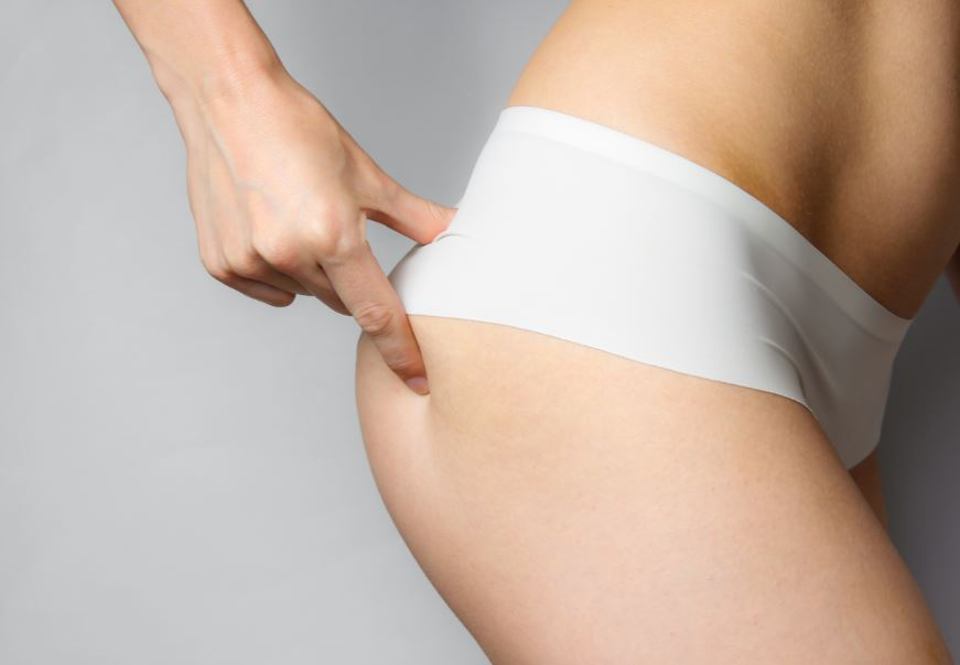 Se quer retirar gorduras de locais específicos do seu corpo para ter uma silhueta mais definida e harmônica, muito provavelmente a lipoaspiração é o procedimento estético correto para você. Leia esse post para entender quando é indicada a lipoaspiração, antes e depois do procedimento, riscos e quem deve buscar esse método. O que é lipoaspiração? A lipoaspiração masculina ou feminina é o segundo procedimento cirúrgico estético mais realizado no país, tem o objetivo de promover a retirada de gorduras de áreas do corpo como barriga, costas, quadris, nádegas, tornozelos, púbis, panturrilhas e até pescoço e papada. Pode ser realizada paralelamente a outras cirurgias como a mamoplastia redutora ou no tratamento de ginecomastia em homens. Uma conversa realista e esclarecedora com um cirurgião experiente e filiado à Sociedade Brasileira de Cirurgia Plástica vai ser o primeiro passo para quem pensa em passar por esse procedimento que, em geral, é indicado para algumas pessoas, como: Pacientes não obesos; Aqueles pacientes que já tentaram eliminar gorduras de partes específicas do corpo com dietas e exercícios mas não tiveram sucesso; Pacientes que têm pele elástica e bem firme; Pacientes que estão com boa saúde. O sonho de contornos mais desejáveis faz parte do imaginário de muitos homens e mulheres que realizam o procedimento, porém, a cirurgia de lipoaspiração não deve ser considerada um método de emagrecimento. Na verdade, o procedimento vai produzir um contorno diferente e mais definido para a área tratada, mas não promove perda de peso. É importante saber também que a lipoaspiração também não vai melhorar as irregularidades das celulites. Além disso, vale reforçar que o corpo vai se moldar aos novos contornos após a retirada das gorduras, mas é preciso tomar cuidado para não ganhar peso posteriormente ao processo. Por esse motivo, hábitos saudáveis, como uma alimentação equilibrada e a prática de exercícios físicos, não devem ser abandonados. Um dos motivos que pode lev