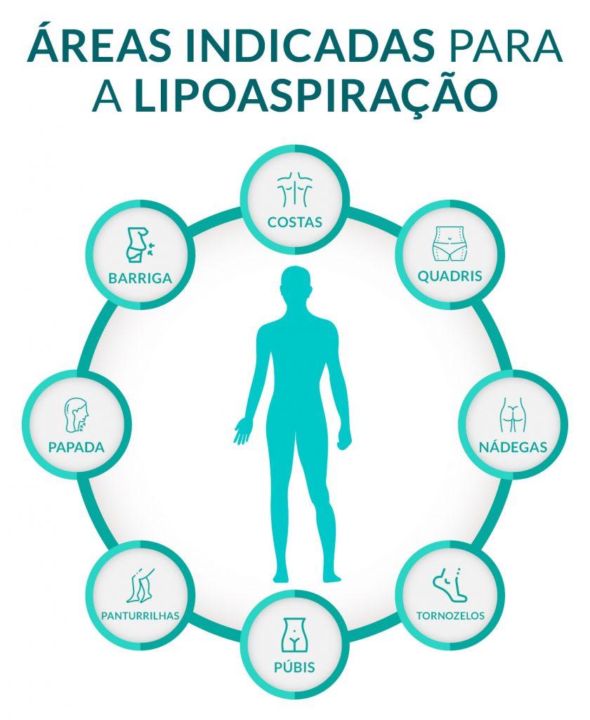 Áreas indicadas para a lipoaspiração  Barriga Costas Quadris Nádegas Tornozelos Púbis Panturrilhas Pescoço