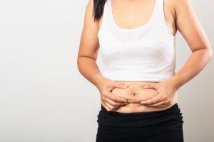 Para quem quer retirar o excesso de pele e gordura do corpo, a dermolipectomia é o procedimento cirúrgico ideal. Leia esse post para saber mais sobre as dermolipectomias, em quais partes do corpo pode ser realizada a cirurgia e para quem é indicada. O que é dermolipectomia? Essa cirurgia de retirada de pele e gordura é indicada para o tratamento estético dos contornos de uma pessoa, seja um homem ou uma mulher. Entre as indicações do procedimento, estão os pacientes que sofreram uma grande perda de peso, após a realização de uma cirurgia bariátrica, porque com esse tipo de procedimento o paciente pode ficar uma quantidade excessiva de pele sobrando pelo corpo todo após o emagrecimento. No entanto, outras condições que levam a grandes oscilações de medidas e flacidez, como uma ou mais gestações e até o envelhecimento, também são motivos que fazem alguém buscar esse procedimento estético. O mais comum é que as pessoas façam a cirurgia na região abdominal, porém, há também dermolipectomia de braços e coxas, além das costas. Em muitos casos, o procedimento pode ser associado a uma lipoaspiração. Mas é importante lembrar que essa cirurgia não se trata de um procedimento para emagrecimento, mas sim para conceder melhores contornos corporais, mais firmes e harmônicos. Diferença entre dermolipectomia e abdominoplastia Para quem quer saber qual a diferença entre abdominoplastia e dermolipectomia abdominal, saiba que os procedimentos são iguais, o que modifica é apenas a nomenclatura. Em geral, na dermolipectomia abdominal, também conhecida como abdominoplastia, também é realizada uma reparação da musculatura da barriga, já que as gestações ou mesmo o ganho excessivo de peso pode levar à diástase abdominal. Para todas as dermolipectomias da barriga será realizada uma incisão horizontal suprapúbica. Além disso, muitas vezes, é necessário corrigir também os excessos de pele e gordura da região pubiana, conhecido como monte de vênus. Tipos de dermolipectomia Após uma avaliação d